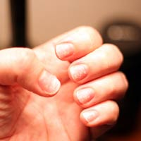 Brittle Nails – Get Back the Moisture