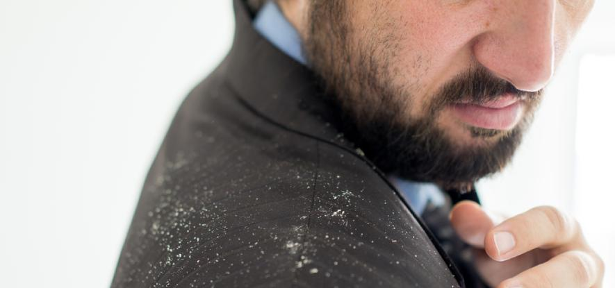 Dealing with Dandruff