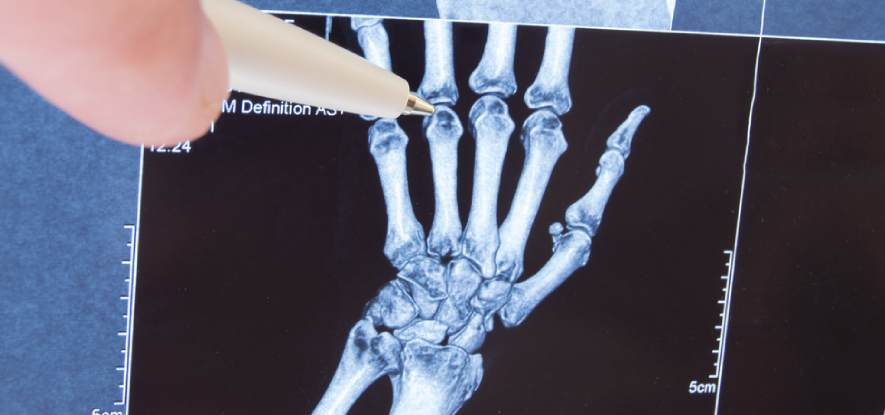 Arthritis Or Injury Treatments