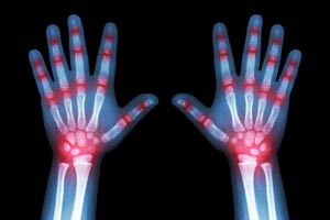 Arthritis or Injury